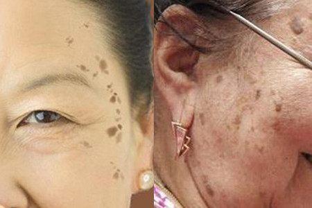 拒绝老年斑:抗氧化,预防大于治疗